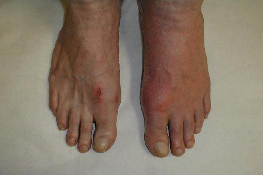 Gout Picture of a Foot