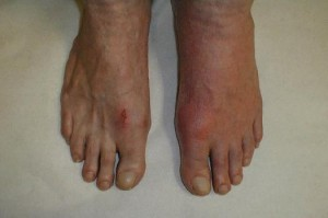 Pictures of Gout in Feet