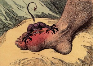 get rid of gout toe