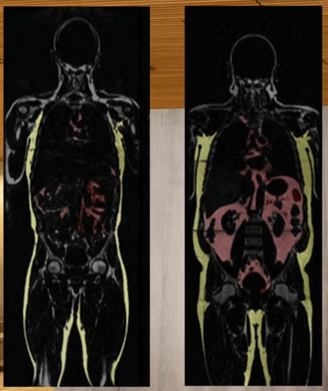 MRI Visceral Fat Comparison